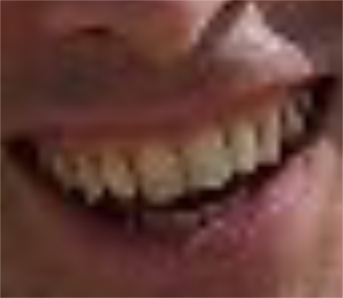 Sebastian Smith teeth