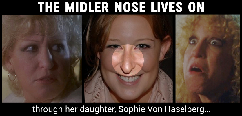 Midler nose lives on